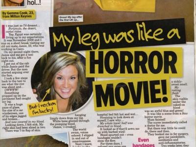 My leg was like a horror movie!