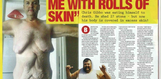 Weight loss left me with rolls of skin